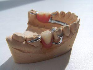 зубной кламмер
