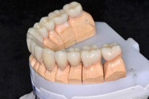 керамический зуб