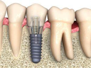 зубная имплантация в королеве