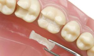 вкладка в стоматологии