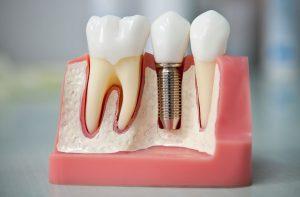 Зубная имплантация 21-го века